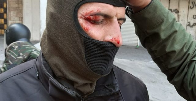 """""""عمليات بغداد"""": إصابة العشرات من أفراد الأمن ببنادق صيد"""